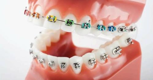 AsyOrtodoncji - ortodoncja dla asystentek stomatologicznych