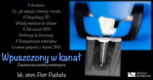 WPUSZCZONY W KANAŁ - Zaawansowane procedury endodontyczne
